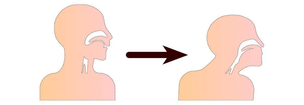 Haltung - Atemwegsobstruktion Kopf überstrecken
