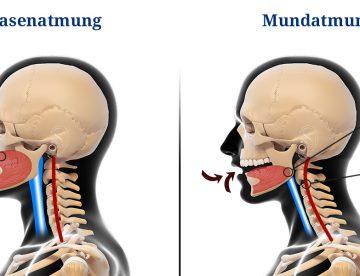 Nasenatmung, Mundatmung - Verengte Atemwege