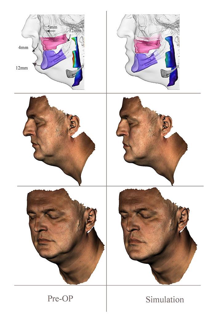 Baric Simulation 1