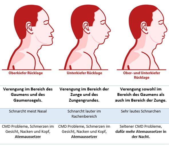 kiefer ursache schlafapnoe hws syndrom