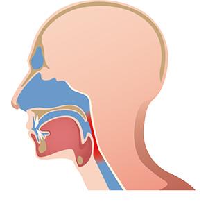 Atemwege verengt vor der Operation