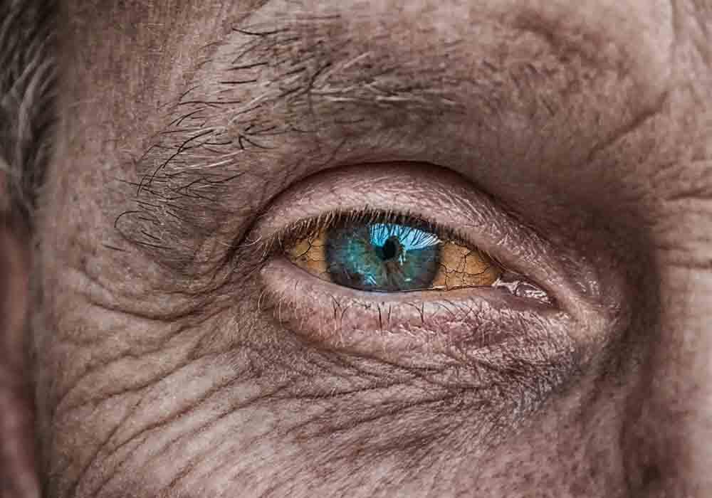Trockene Augen durch CPAP